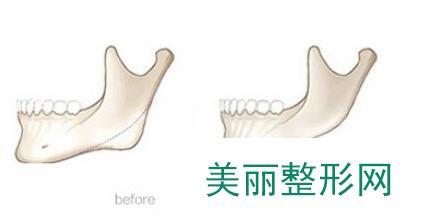 下颌角切除费用多少钱?下颌角切除手术价格是多少?