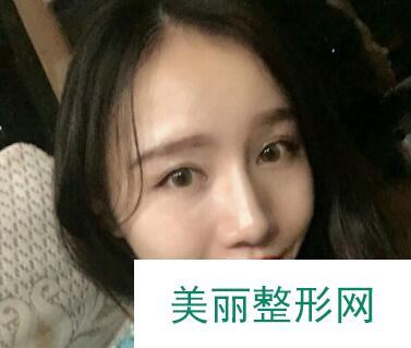 四川军大2019部分价格表曝光|附瘦脸案例效果反馈