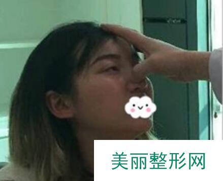 成都西区鼻部整形价格表|附鼻综合案例反馈