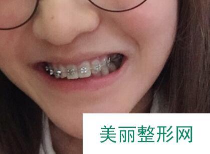 成都高新圣贝口腔怎么样\托槽矫正牙齿效果反馈