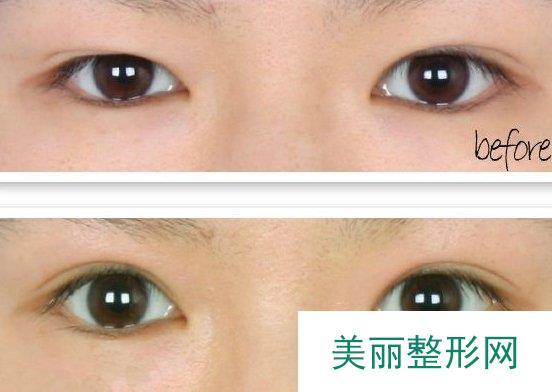 双眼皮修复价格?修复双眼皮需要多少钱