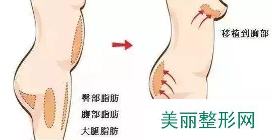 自体脂肪隆胸整形手术价格贵不贵 自体脂肪隆胸的费用要多少