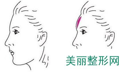 北京玻尿酸丰额头价格表北京玻尿酸丰额头要多少钱