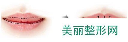 成都厚唇改薄手术多少钱  成都厚唇改薄价格