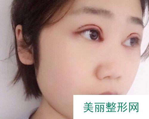 2019武汉一美医疗美容医院全新价格表一览及案例展示