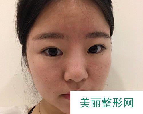 武汉美立方医疗美容医院2019全新价格表心动来袭及案例展示