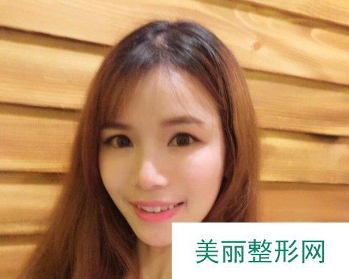 武汉爱美汇医疗美容医院2019全新价格表曝光及案例展示