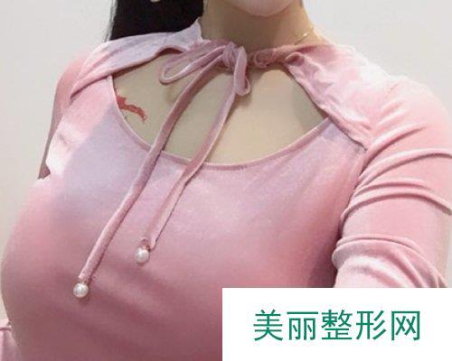 武汉希思特2019胸部整形价格表及案例展示