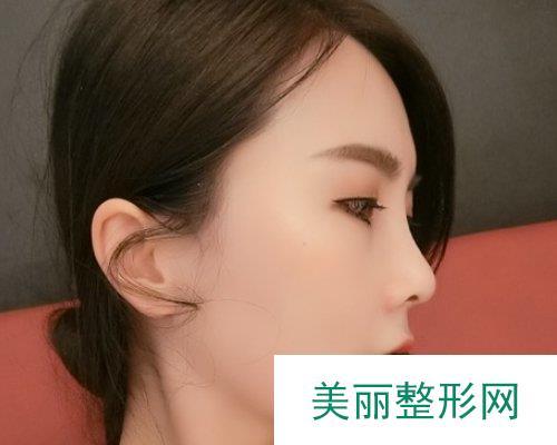 武汉美天2019鼻部整形价格表及案例展示