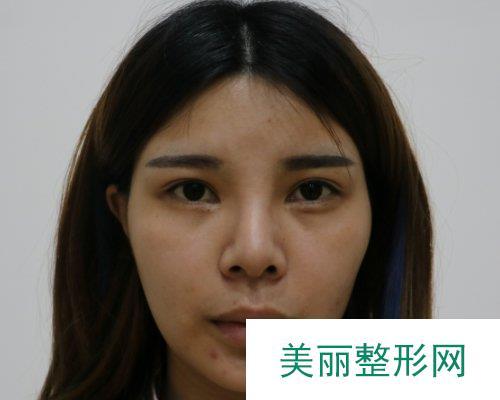武汉中翰整形2019鼻部整形价格表及案例展示