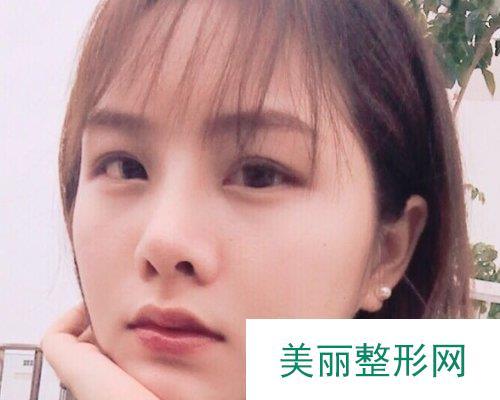 武汉忆美凯德2019鼻部整形价格表及案例展示