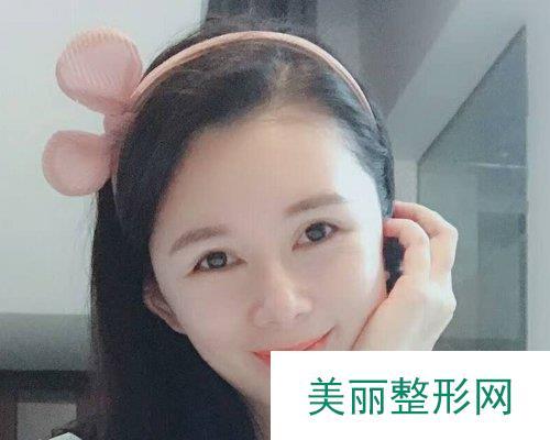 武汉艺星2019面部轮廓价格表及案例展示