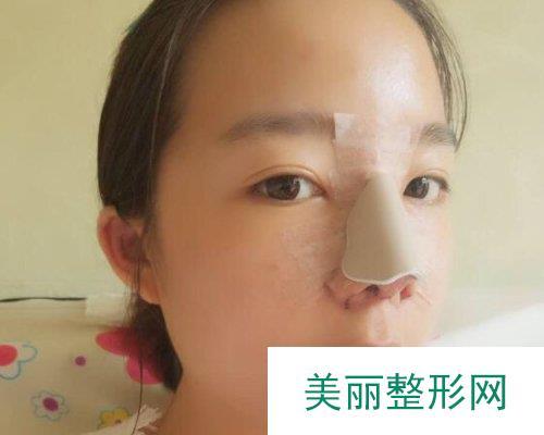 衡阳雅美医院2019全新价格表详览及鼻综合案例展示