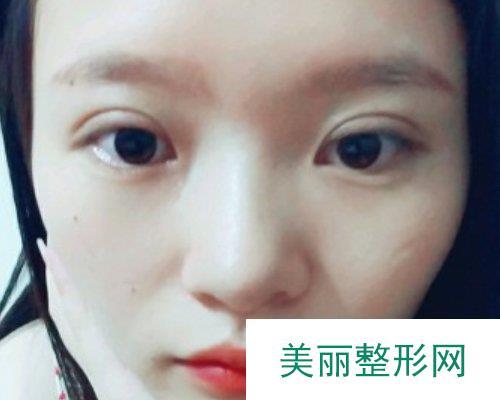 娄底希美整形2019全新价格表曝光及双眼皮案例展示