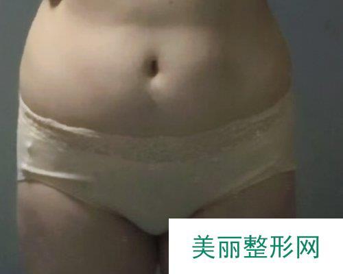 2019常德爱思特整形价格表一览及吸脂瘦身案例分享