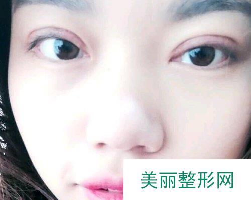 岳阳爱思特医院2019价格表钜惠来袭及双眼皮案例分享