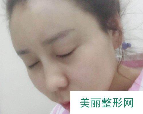 北京润美玉之光医院2019全新价格表惊喜曝光及自体脂肪填充案例分享