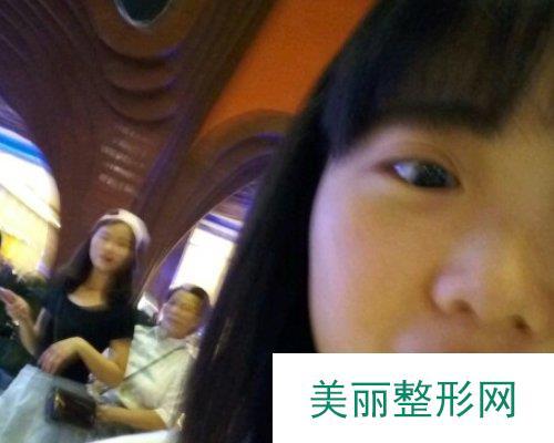 杭州华山连天美医院2019全新价格表一览及双眼皮案例分享