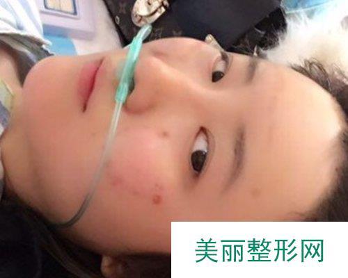 杭州格莱美整形医院2019价格表倾情分享及自体脂肪填充面部案例分享