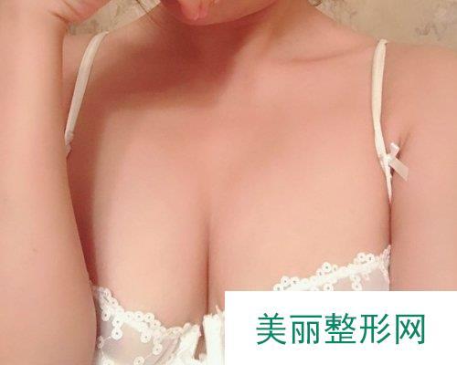 杭州维多利亚整形2019价格表分享及自体脂肪丰胸效果分享