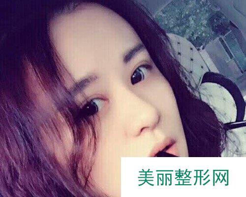 杭州美莱医院2019价格表详览及双眼皮效果分享