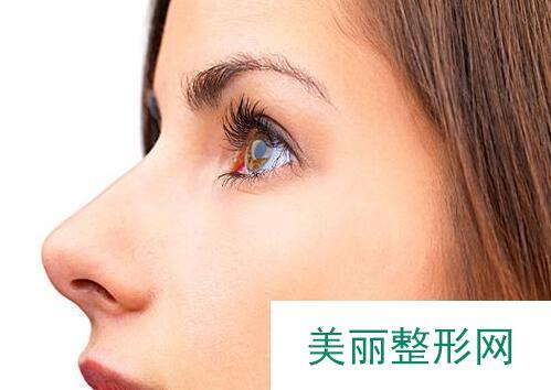 上海隆鼻手术的价格多少钱
