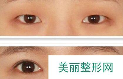 青岛双眼皮开眼角手术多少钱