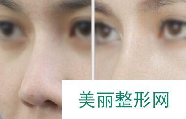 鼻综合整形价格 鼻综合图片对比