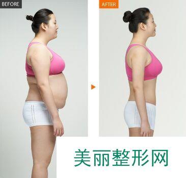 全身抽脂减肥多少钱、全身抽脂效果图