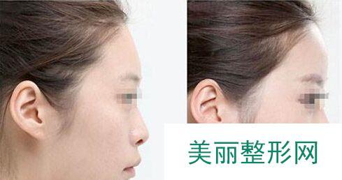 北京耳软骨隆鼻手术多少钱
