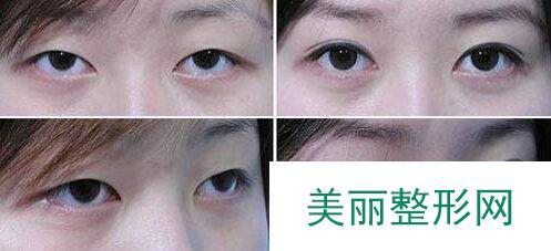 在北京做双眼皮要多少钱