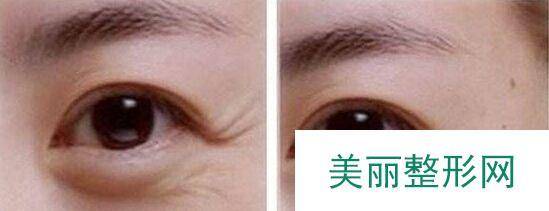 眼部除皱价格一般多少钱
