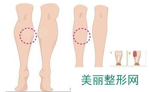 瘦腿针可以保持多久、打瘦腿针要多少钱