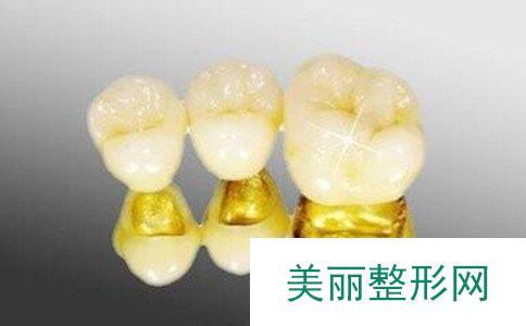 黄金烤瓷牙的寿命是几年、黄金烤瓷牙价格是多少