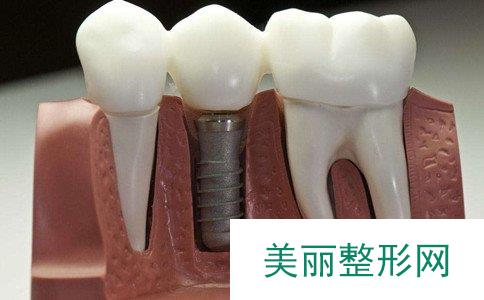 种植牙能用多长时间、一颗种植牙要多少钱