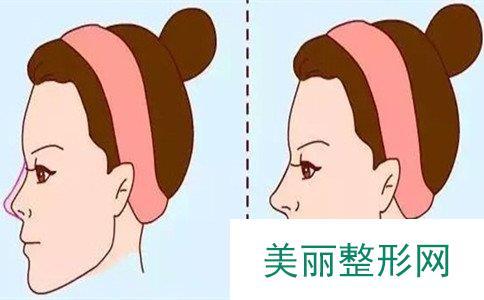 隆鼻危险吗、隆鼻手术费用大概多少钱
