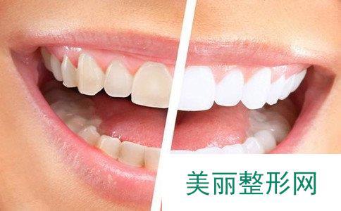 皓齿美白副作用大吗、皓齿美白牙齿多少钱