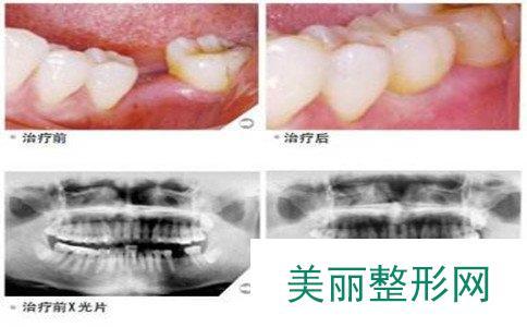 种植牙的寿命是多长,韩国种植牙价格是多少