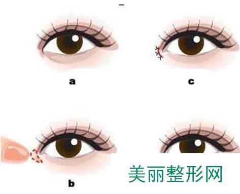 开眼角手术价钱介绍 开眼角效果对比照片