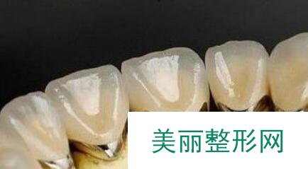 上海钴铬烤瓷牙价格具体是多少钱