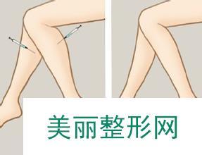 沈阳医大一院整形外科价格表新版预览