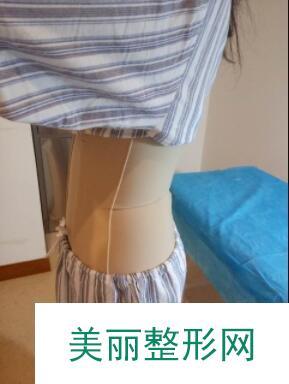 环形腰部吸脂案例