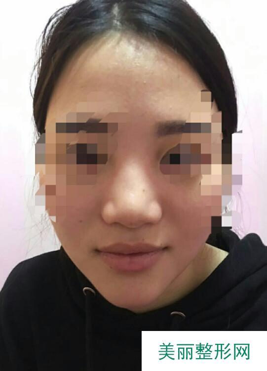 北大深圳医院整形科价格表,胡华新假体隆鼻前后对比图案例