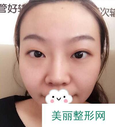 信阳东方艺员工双眼皮手术术前效果