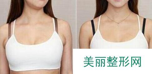 副乳切除效果对比图,腋下副乳手术价格