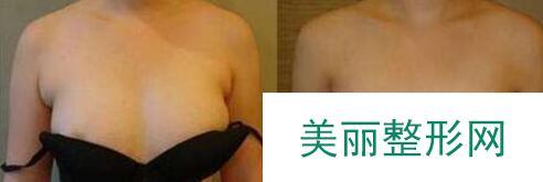 副乳手术前后图片,腋下副乳手术价格