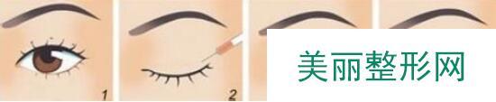 高分子埋线双眼皮效果图和价格