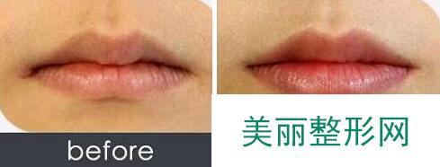 玻尿酸丰唇前后对比图,丰唇手术价格、方法
