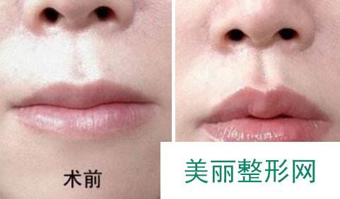 自体脂肪丰唇前后对比图,丰唇手术价格、方法