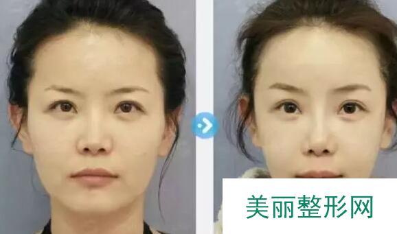 除皱抗衰老前后对比图